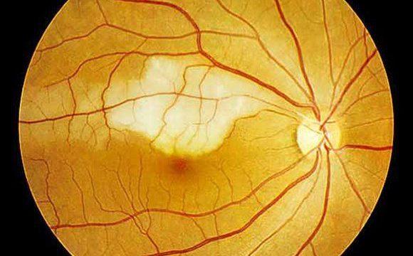 Artery Occlusion