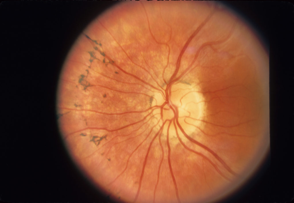 Dating site for retinitis pigmentosa